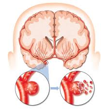 Accident vascular cerebral AVC tipuri cauze factori de risc si simptome