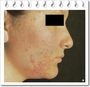 Dermatoze inestetice ale fetei II